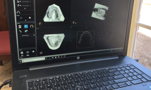3D Imaging Reach Orthodontics in Madison AL