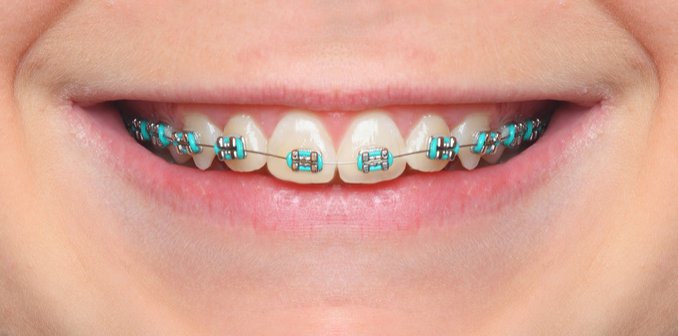 What S In Your Mouth Your Braces Explained Reach Orthodontics